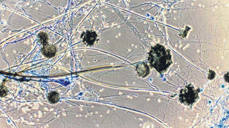 Black Fungus : కరోనా రోగులను భయపెట్టిస్తున్న బ్లాక్ ఫంగస్ .. ఇది ఎలా వస్తుంది? చికిత్స ఎలా?