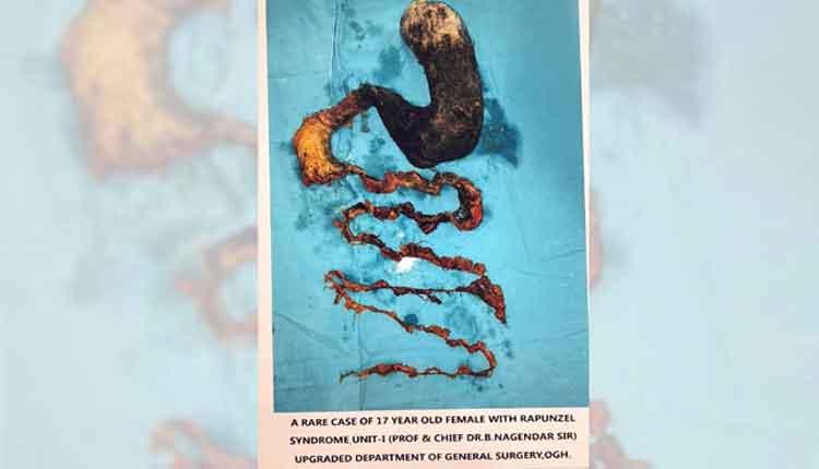 ఉస్మానియాలో బాలికకు అరుదైన శస్త్ర చికిత్స.. 2 కేజీల హెయిర్ బాల్ తొలగింపు